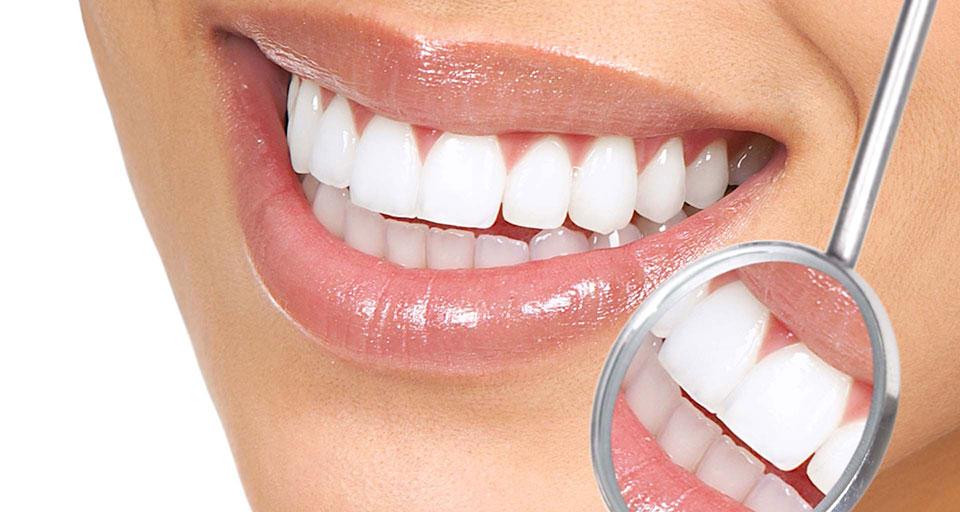 457f1f0b6e Especialista em odontologia estética, Dr. Fábio Fernandes, fala sobre  procedimento que corrige imperfeições, rachaduras e colorações, no sorriso  do paciente