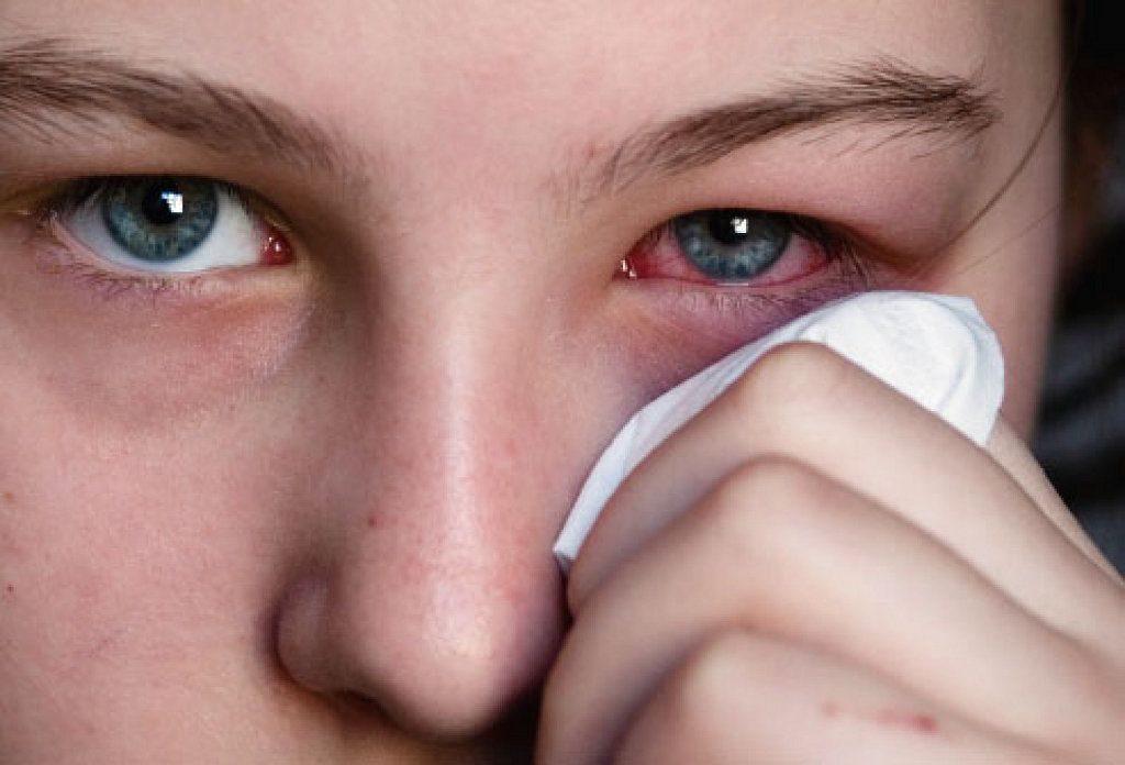 A conjuntivite é altamente contagiosa e muito comum no verão.