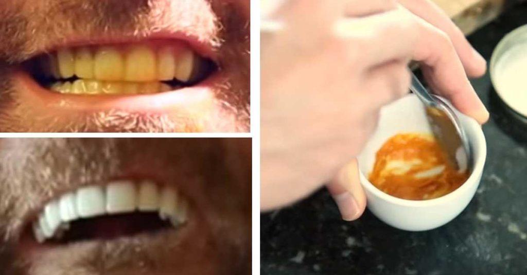 Clarear Os Dentes Com Carvao Entenda A Tecnica Que Promete Um