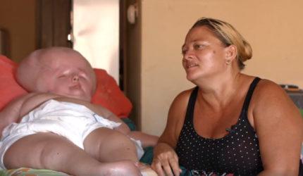 A história de vida de Graziely, que sofre de hidrocefalia