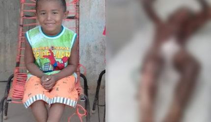 Criança é internada após ter corpo queimado em carvoaria