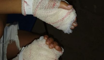 Mãe é presa acusada de queimar as mãos do filho de quatro anos