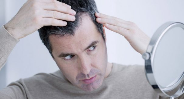 Quais são os primeiros sinais da calvície em homens?