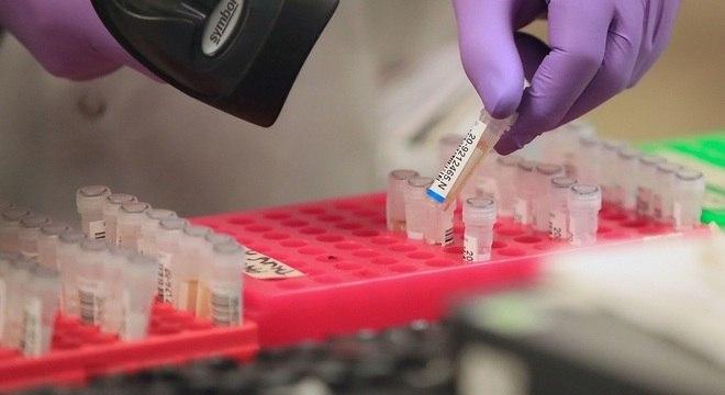 12 pessoas estão curadas do novo coronavírus no Maranhão   O Imparcial